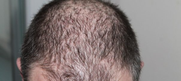 Hair Loss Issues