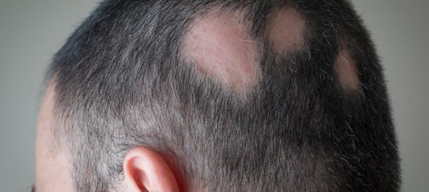 Hair Loss patches